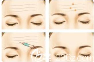 额部注射除皱过程示意图