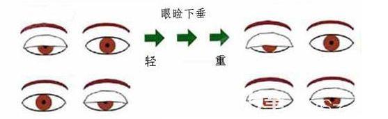 眼睑下垂会造成什么影响?