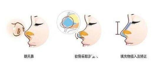 朝天鼻整容需要做鼻综合整形