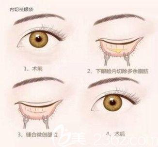 内路祛眼袋过程示意图