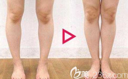 o型腿矫正效果