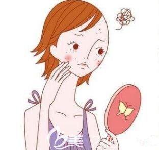 下巴长痘是什么原因呢?