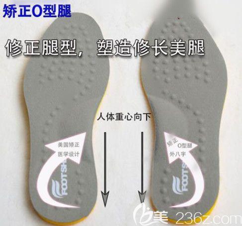 O型腿矫正鞋垫