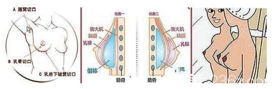 假体隆胸的手术切口和假体放置的位置