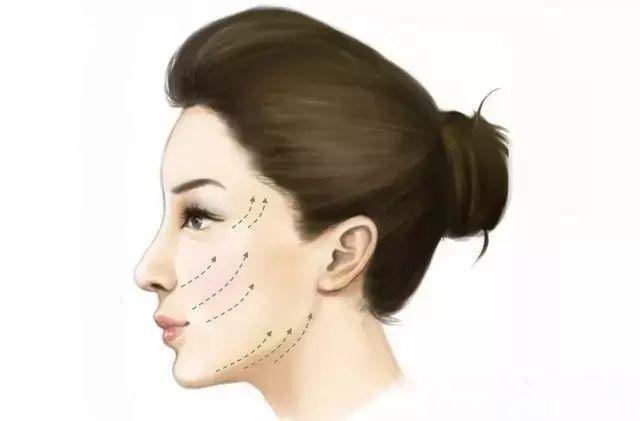 面部埋线提升原理介绍