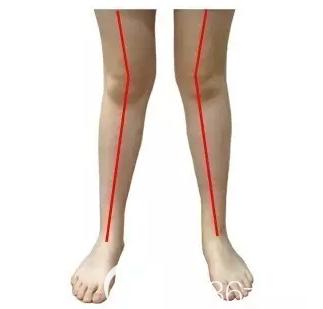 x型腿示意图