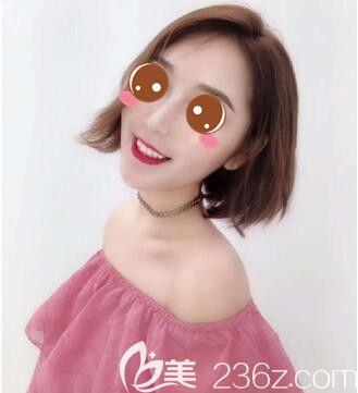 国内做的面部吸脂+假体垫下巴效果一点不比在韩国做差而且价格还便宜