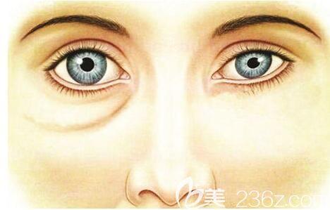 抽脂去假性眼袋效果对比