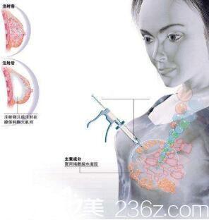 注射式隆胸