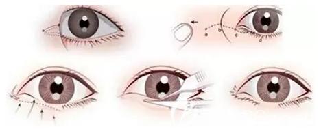 开眼角手术图解