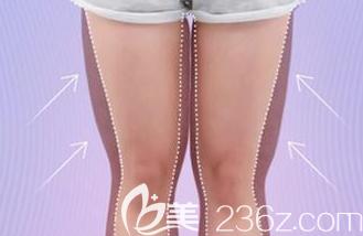 大腿内侧吸脂