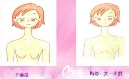 乳房下垂萎缩不对称示意图