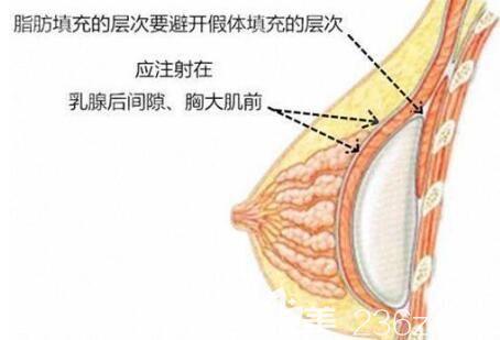 自体脂肪注射丰胸的手术部位