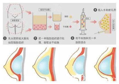 自体脂肪丰胸和假体隆胸手术示意图