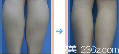 网友私信分享小腿抽脂术后3月无效果的对比照