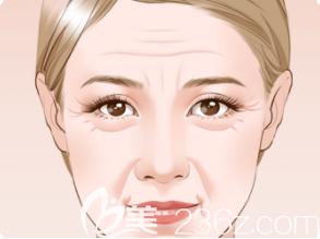 面部下垂衰老图