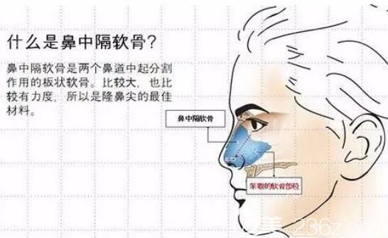 什么是鼻中隔软骨