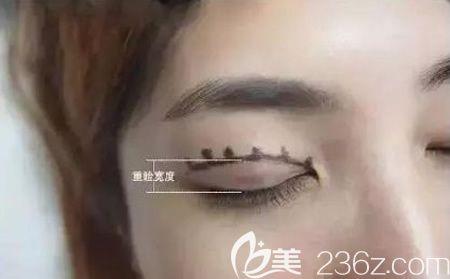 双眼皮宽度的决定性因素介绍