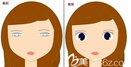 为什么有的人做了双眼皮反而不好看的原因揭秘