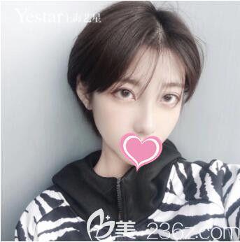 了解到国内和韩国整形价格后我在上海做了切开双眼皮+Ys立挺鼻整形术后效果立竿见影