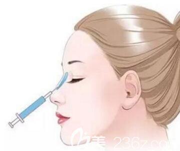 玻尿酸隆鼻会不会变形?鼻子会变宽吗?