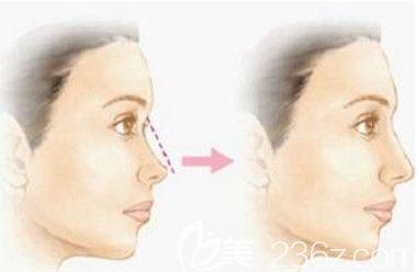 注射玻尿酸隆鼻前后效果对比照