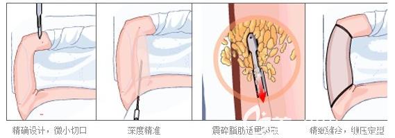 手臂抽脂手术过程