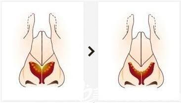 什么是鹰钩鼻?