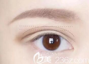 双眼皮后出现疤痕增生该怎么办?