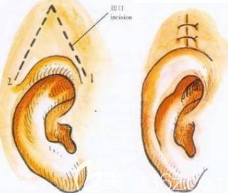 杯状耳治疗前后对比图