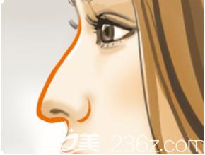 驼峰鼻示意图