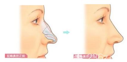 驼峰鼻矫正手术效果图