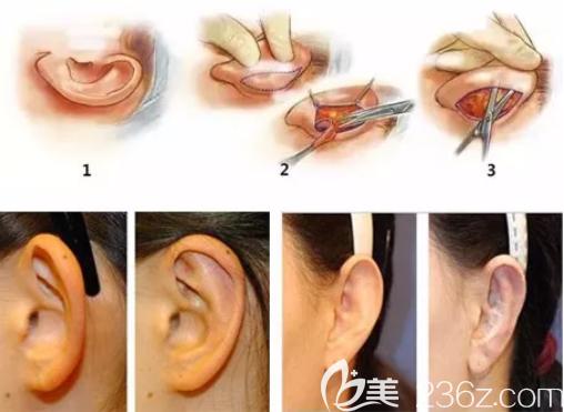 招风耳治疗图解和效果