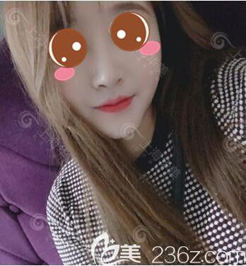 想隆鼻的妹纸看过来,我在上海做鼻综合真人案例恢复图价格优惠美丽不打折扣