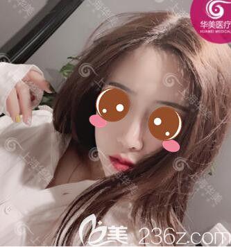 假体隆鼻和自体软隆鼻那个好?我在上海做肋软骨鼻综合案例一个月的恢复图就明白了