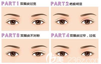 双眼皮失败的几种类型