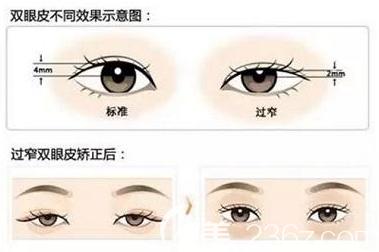 双眼皮不同效果示意图