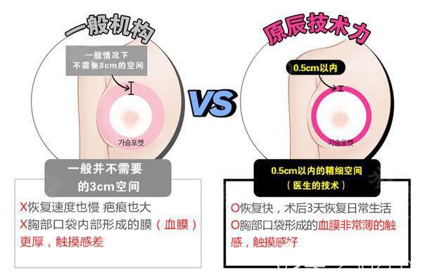 韩国原辰隆胸与一般机构优势对比