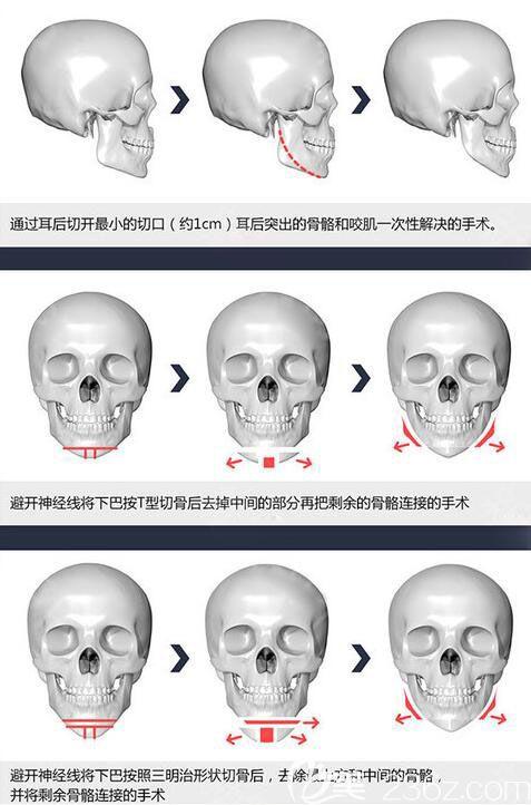 韩国原辰长曲线下颌角手术方法