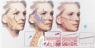 埋线提升手术过程图