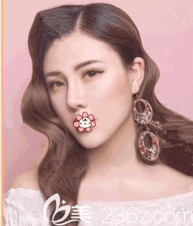 明确了重庆整容价格之后我在重庆艺星Yestar朱家旭那儿做了硅胶假体垫下巴。