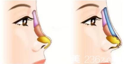 鼻综合手术效果图