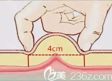 两个手指捏起脂肪够4公分