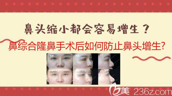 鼻综合隆鼻后鼻头增生防止方法介绍