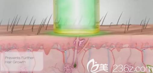 激光脱毛过程图示
