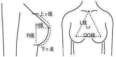 什么是假体隆胸?