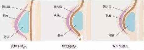 假体隆胸多久能变软?