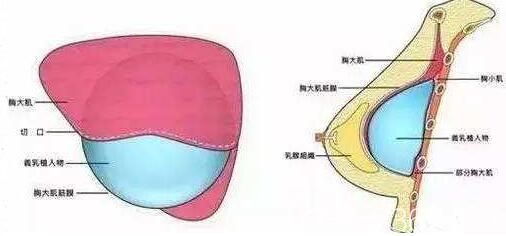 假体隆胸术后如何快速变软
