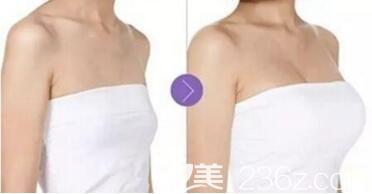 做假体隆胸术前术后效果对比照