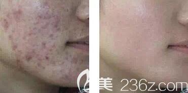 激光治疗痤疮疤痕前后效果对比照